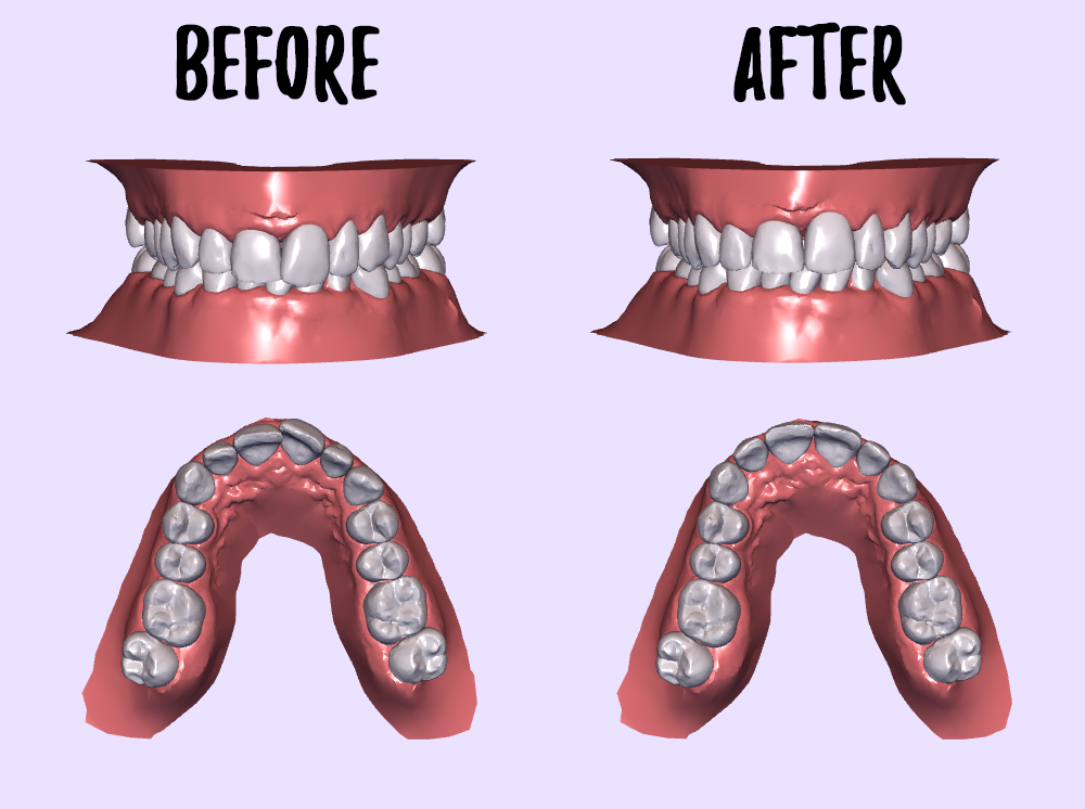Smile Direct Club  Clear Aligners Size Comparison
