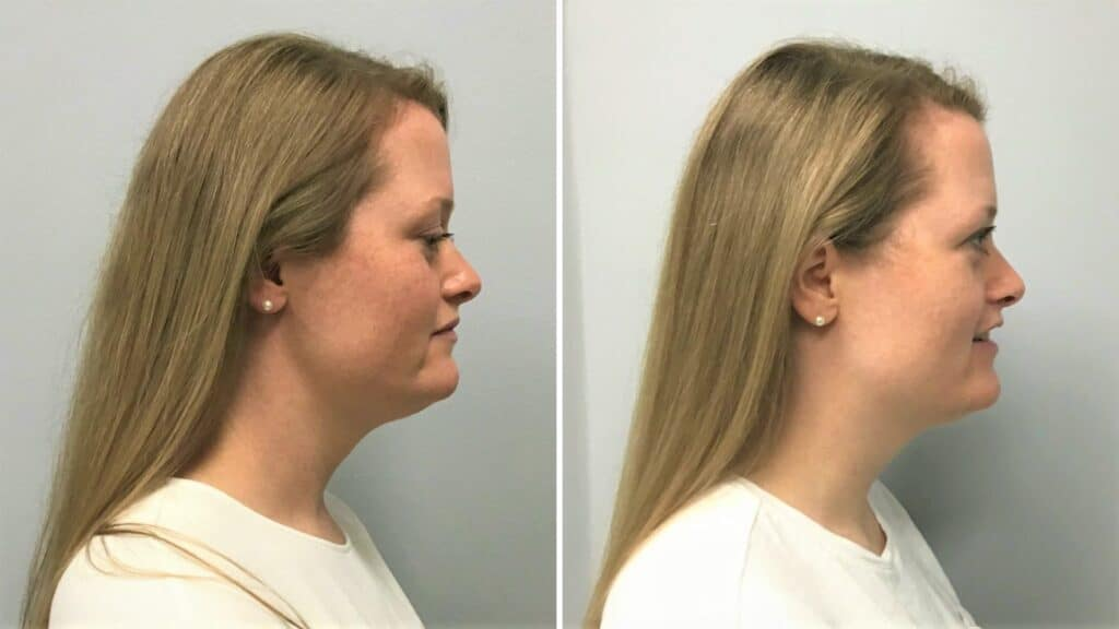 kybella before and after (3 rounds)