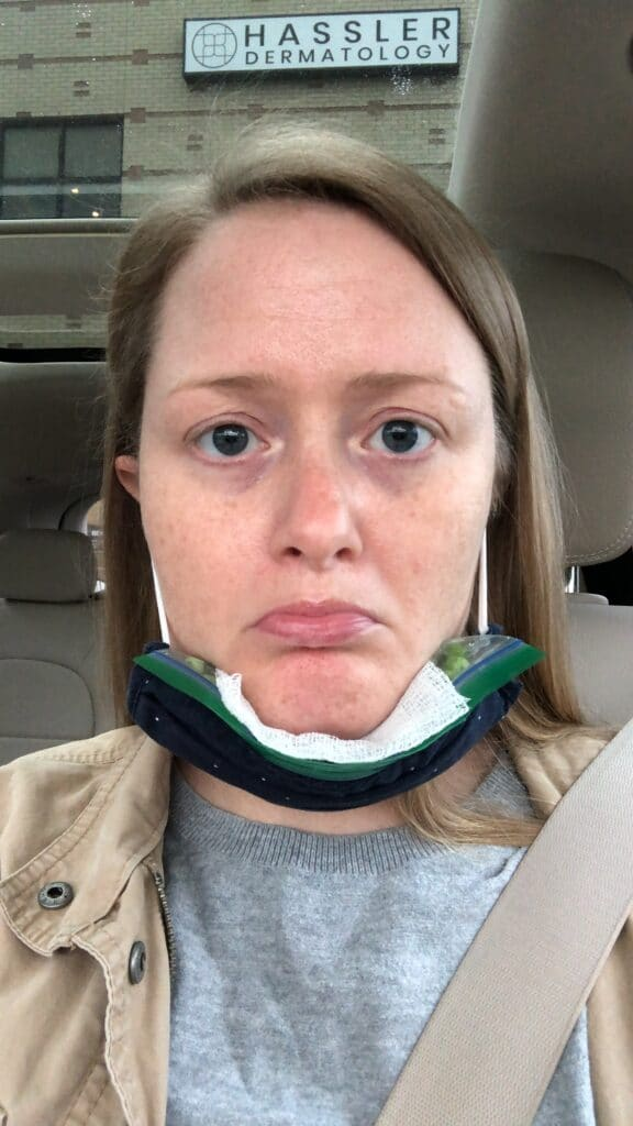 ice pack on chin to help swelling after kybella treatment