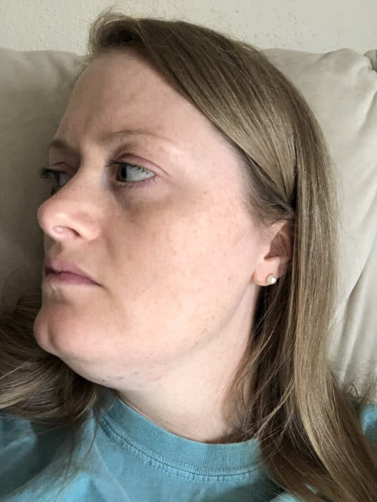 kybella swelling on day one