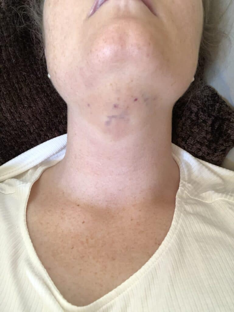 swelling after getting kybella treatment to get rid of double chin